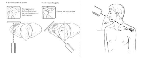 calcoli alla vescica intervento chirurgico